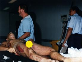 Andrew after autopsy - broken jawbone, tracheotomy wounds