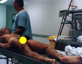 Andrew after autopsy, broken jawbone, tracheotomy wounds